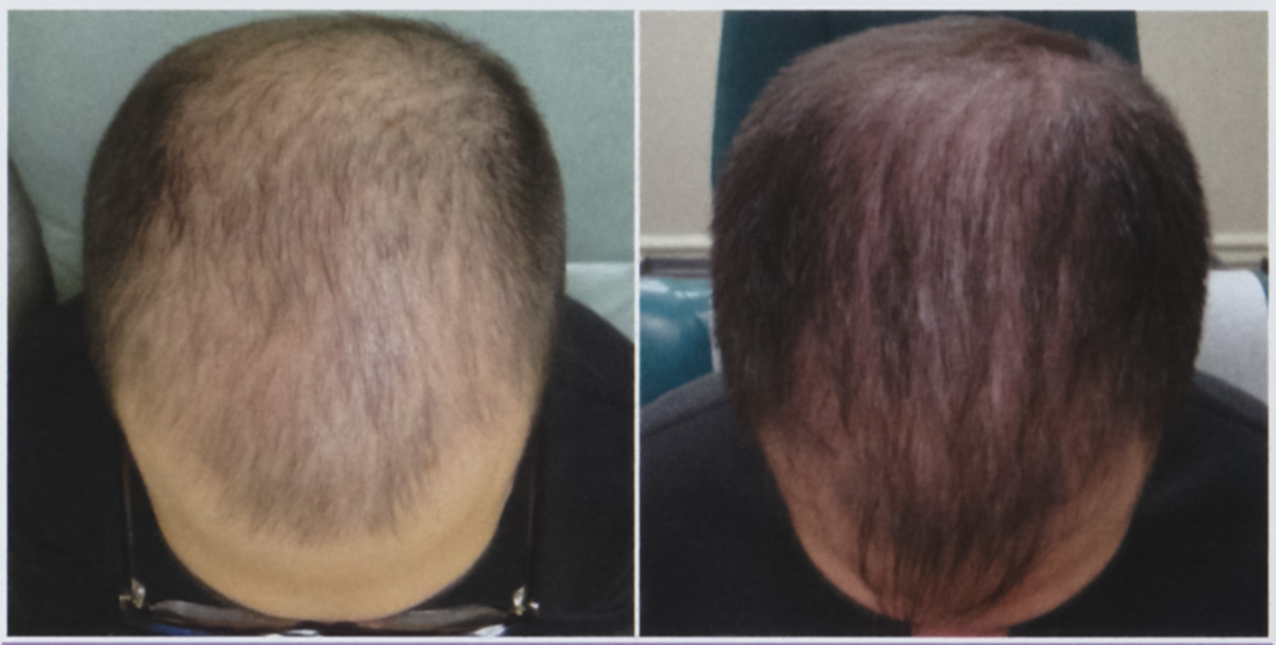 PRP Plasma Rich Platelets- before and after
